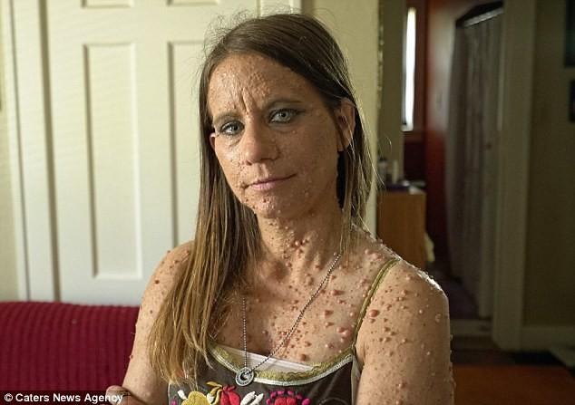 Женщина пытается избавиться от 6 тысяч опухолей (1)