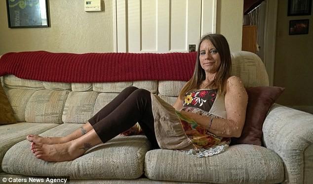 Женщина пытается избавиться от 6 тысяч опухолей (10)