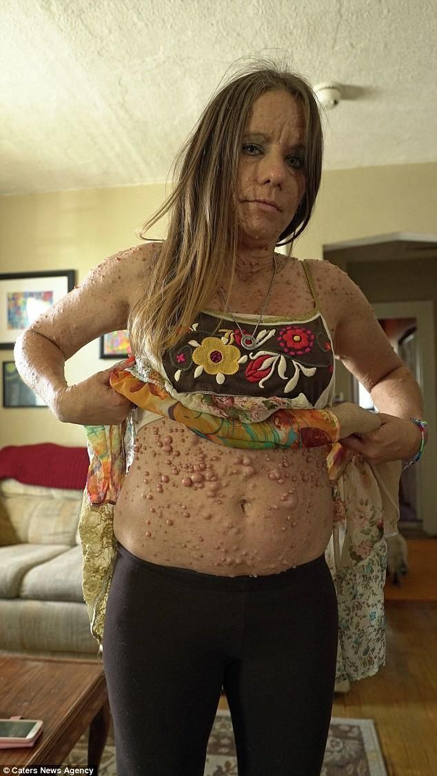 Женщина пытается избавиться от 6 тысяч опухолей (5)