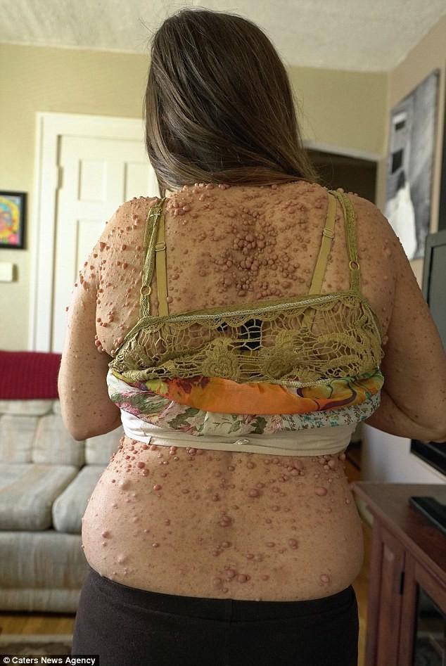 Женщина пытается избавиться от 6 тысяч опухолей (6)