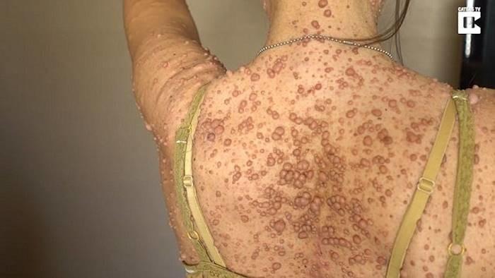 Женщина пытается избавиться от 6 тысяч опухолей (7)