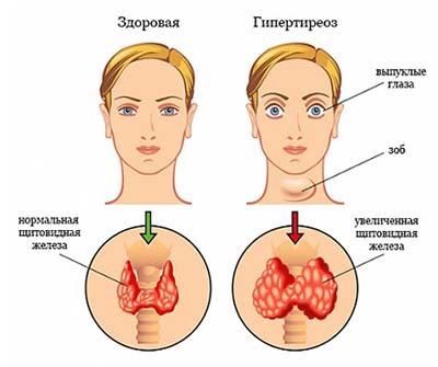 9 признаков того, что у вас заболевание щитовидной железы (3)