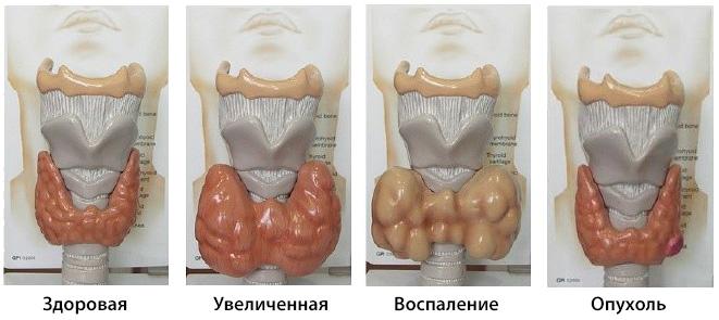 9 признаков того, что у вас заболевание щитовидной железы (1)